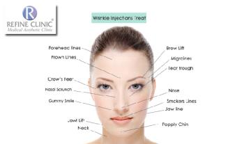 Cosmetic Beauty Treatments - Diathermy for Facial Veins from €69 & Dermal Filler Treatments from €249 at Refine Clinic, D2
